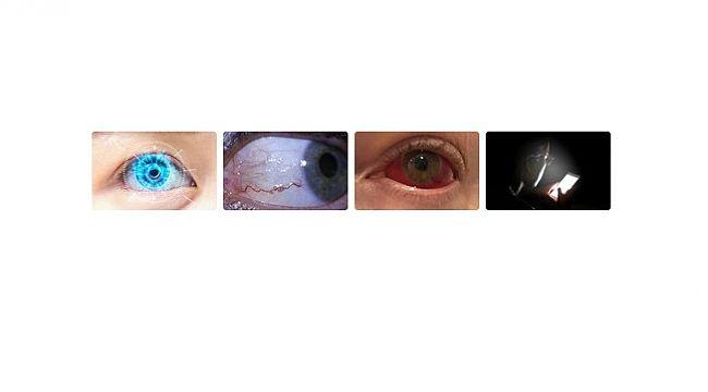 Şiddetli göz ağrısı kör olmanıza neden olabilir - TÜKETİCİLER ÖNEMLİ!